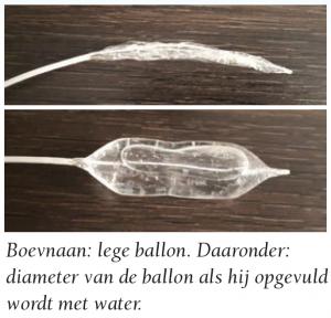 ballon-endoscoop