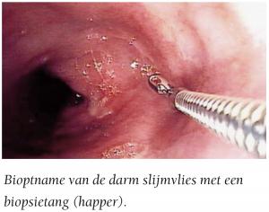biopt-nemen-endoscopisch-onderzoek