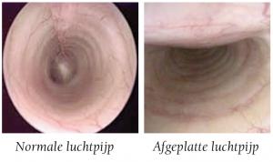 onderzoek-luchpijp-met-endoscoop